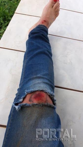 A calça jeans ficou rasgada na queda. (Foto: Portal Nova Santa Rosa)