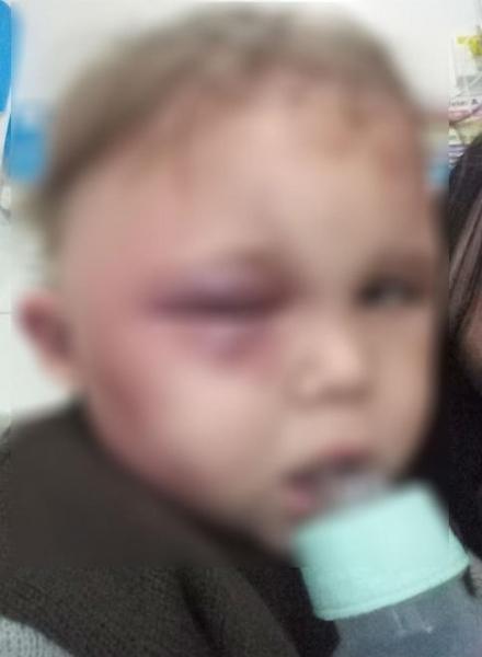 Criança deve receber alta do Hospital Evangélico, em Curitiba, nesta quarta-feira (7) — Foto: Arquivo pessoal
